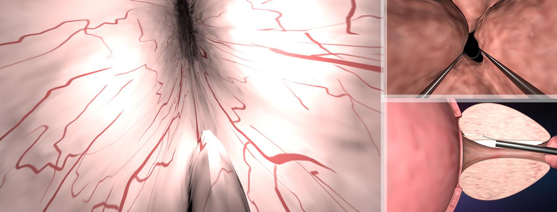前列腺手术动画视频制作
