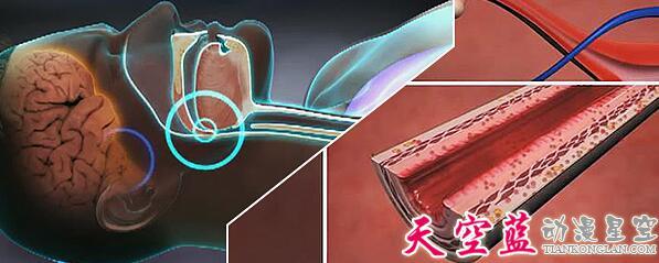 医学医疗三维3D仿真动画制作