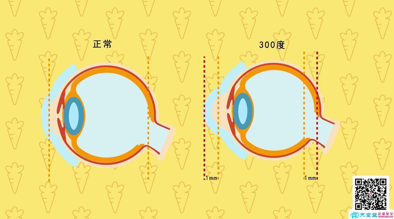 小儿近视眼是怎样发生的300度.jpg