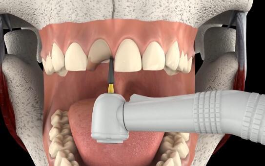 三维医学动画『牙科补牙』视频模拟演示制作
