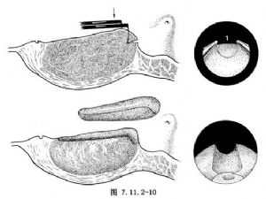 经尿道前列腺切除术
