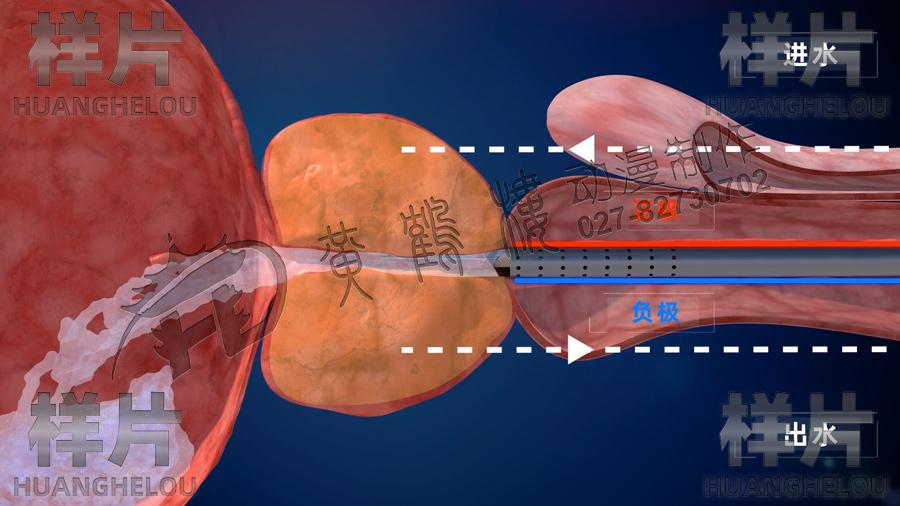 3d医疗手术动画
