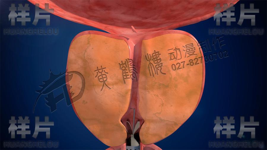 医疗手术动画视频