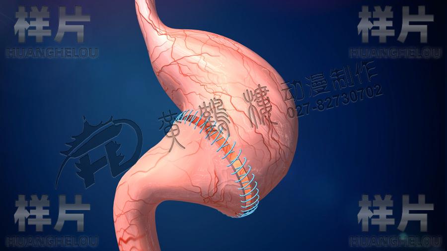 胃缝合.jpg