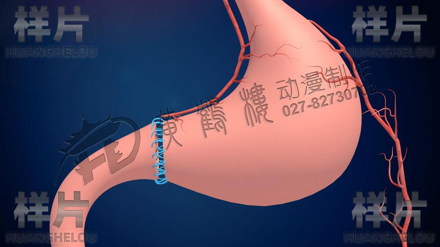 胃缝合血管.jpg