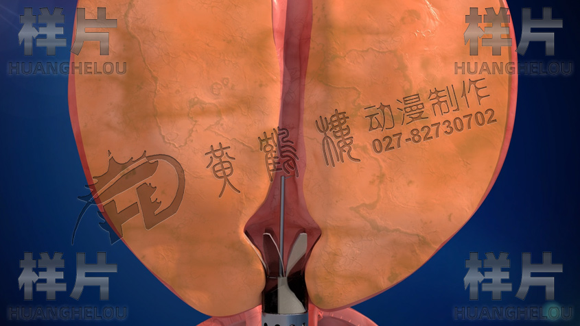 尿道保护鞘张开.jpg
